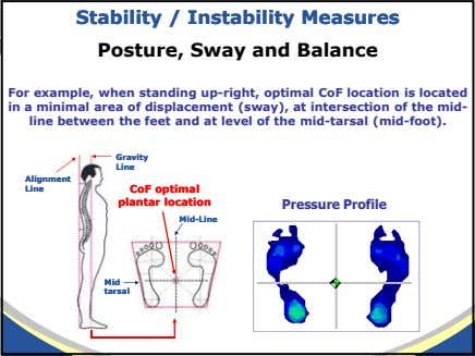 StabilityStability // InstInstabilityability MeasuresMeasures Posture, Sway and Balance For example, when standing