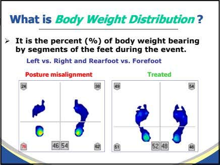 WhatWhat isis BodyBody WeightWeight DistributionDistribution ?? It is the percent (%) of body weight bearing