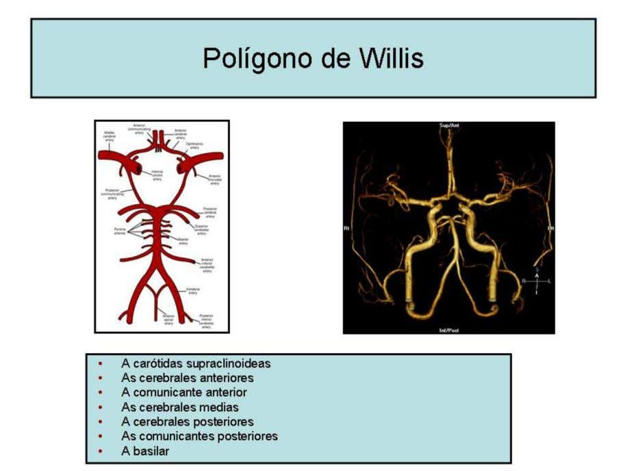 Fig. 11 : Polígono de Willis. References: Hospital de Cruces - Barakaldo/ES - El quiama