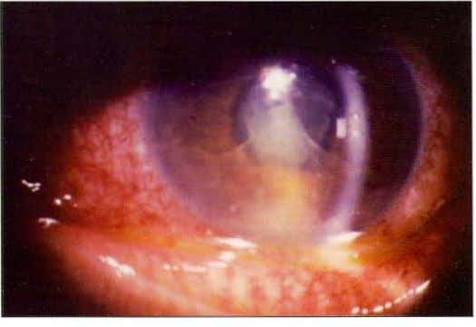 an HlA B27 positive patient with ankylosing spondylitis Fig. 1.2: Anterior chamber slit beam photograph showing