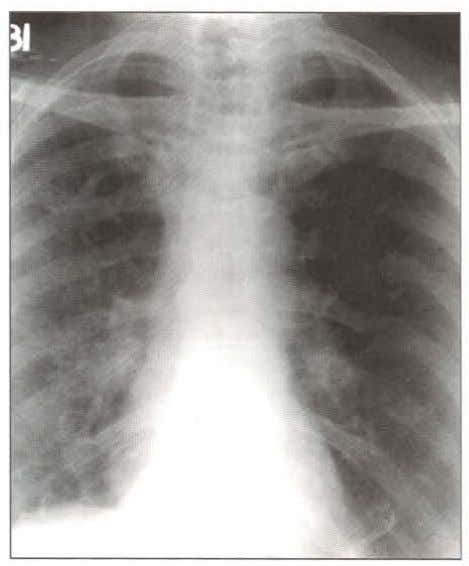 Systemic Manifestatons of Sarcoidosis Fig. 18.9: Chest X-ray showing bilateral hilar lympha- denopathy in a patient