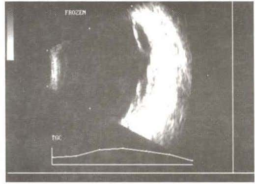 uveitic stage of VK H syndrome . Ultrasound in VKH Syndrome Fig. 19.2: Ultrasound of a