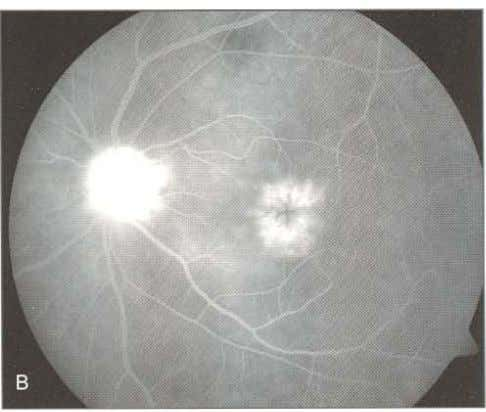 and cystoid macular edema in both eyes (Figs A and B) Fig s 7. 5A and