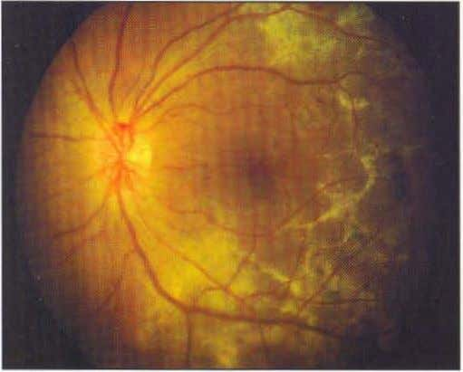 of CNVM and vision improved subsequenlly (Fig. 8). Fig. 8.8: Optic disc neovascularization with cystoid macular