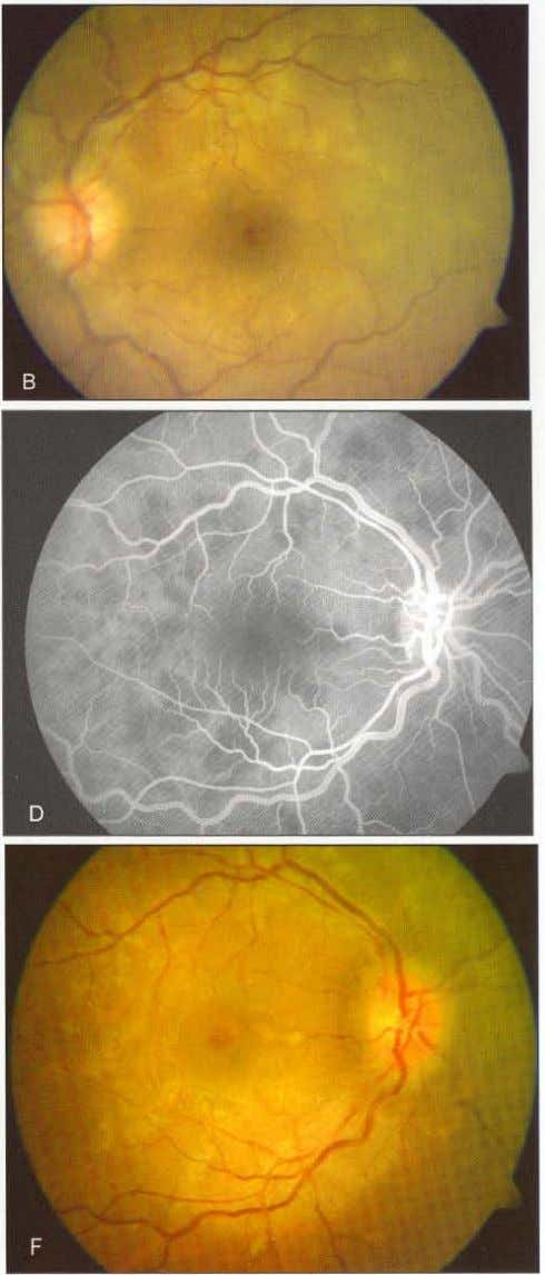 "Placoid Pigment Epitheliopathy ""'"": 55 Fig s 10. lA to F: (A and B) Fundus photos"