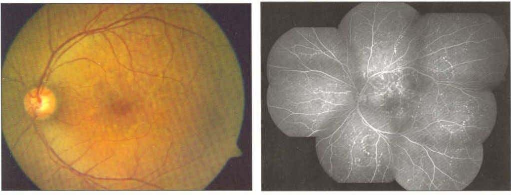 seen around which laser photocoagulation (arrow) was done •• Fig. 15.6: Fundus photograph of a patient
