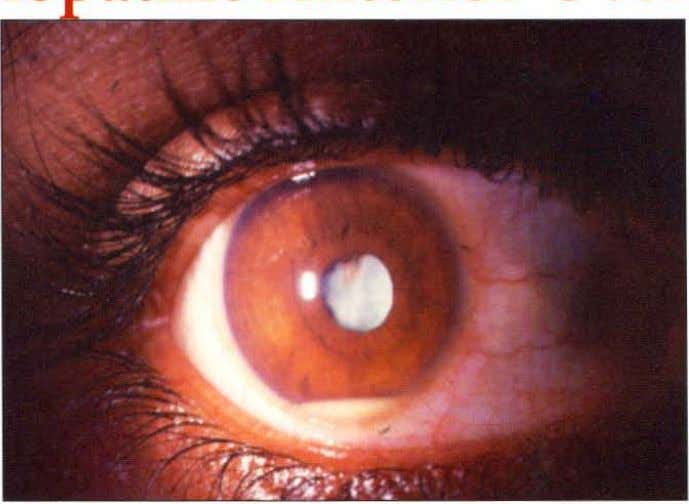 CHAPTER ONE Idio thic Anterior Uveitis