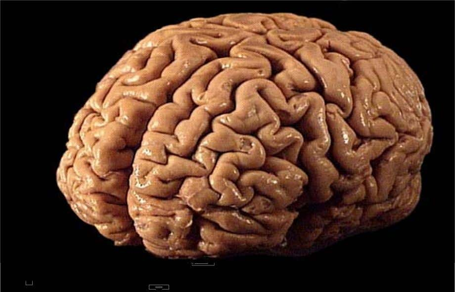 The Anesthesia of the Brain. http://www.bing.com/images/search?q=photo+of+the+brain&id=0B2D032F16C0AC694463D02