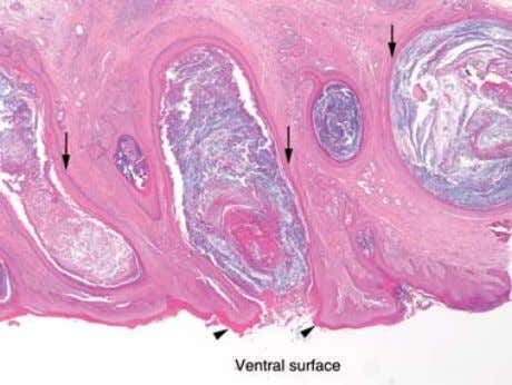 Duclos et al. Figure 7. Photomicrograph of ventral interdigital skin. Note compact hyperkeratosis (arrowheads) covering