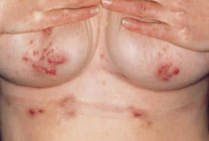 lesions of acne inversa, late stage with dermal contracture. fig. 2 Submammary lesions of acne inversa.