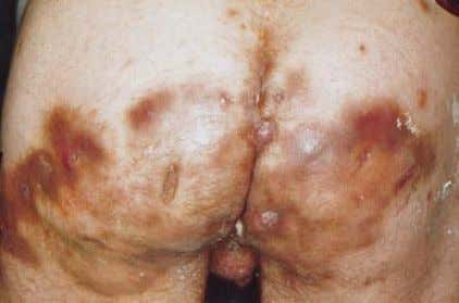feature, pilonidal sinus (pilonidal cyst), thus creating fig. 3 Severe involvement of the buttocks in acne