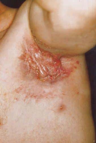 Acne inversa 533 fig. 1 Axillary lesions of acne inversa, late stage with dermal contracture. fig.