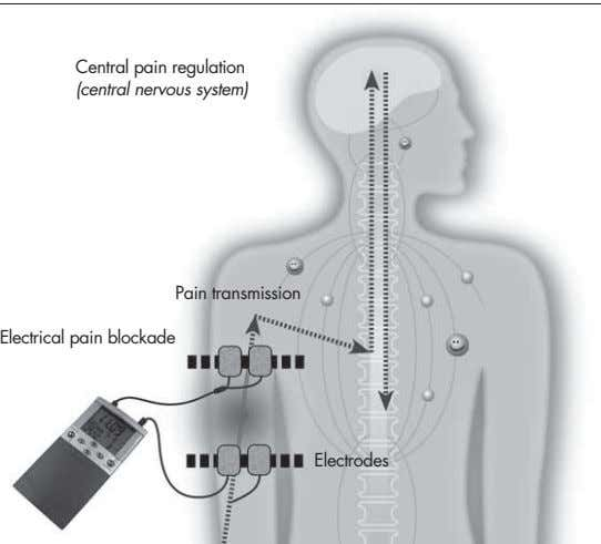 Central pain regulation (central nervous system) Pain transmission Electrical pain blockade Electrodes