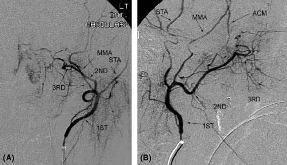 superficial temporal artery; MMA, middle meningeal artery. Figure 25 Internal maxillary artery. ( A , B