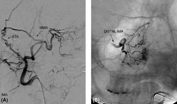 Abbreviations : MMA, middle menin- geal artery. Figure 27 IMA nasal arcade ( A ) AP