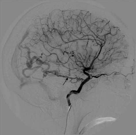 PCA or fails to fuse with the PCA and becomes the dominant Figure 3 Lateral angiographic
