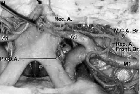 can be avoided. Treatment with platinum coils of narrow- Figure 13 Gross anatomic specimen, anterosuperior view