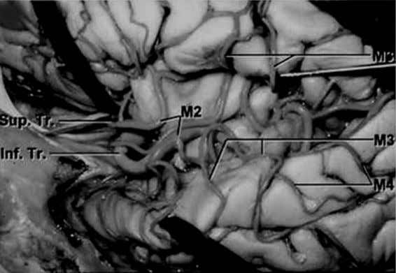 28 Bell et al. Figure 11 Gross anatomic specimen of the arterial anatomy of the insula