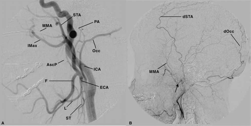 2: Applied Neurovascular Anatomy of the Brain and Skull 31 Figure 18 Lateral common carotid artery