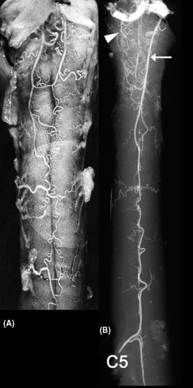 42 Thron Figure 4 Anterior spinal artery in the cervical spinal cord. The pattern of supplying