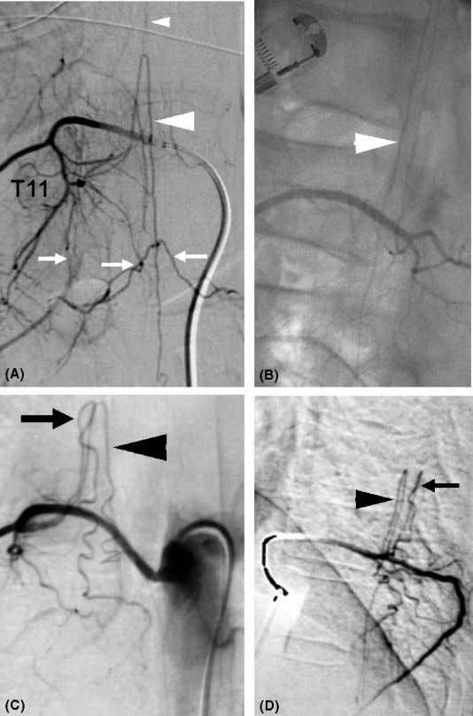 44 Thron Figure 7 Angiographical demonstration and identification of spinal cord arteries. ( A , B