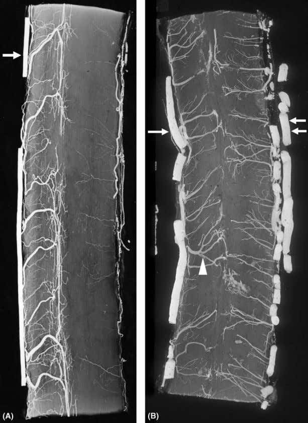 Chapter 3: Vascular Anatomy of the Spine and Spinal Cord 47 Figure 10 Comparison between intrinsic