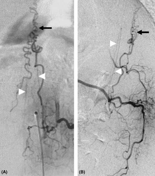 angiography; SDAVF, spinal dural arteriovenous fistula. Figure 18 DSA of a SDAVF with an anterior radiculo-
