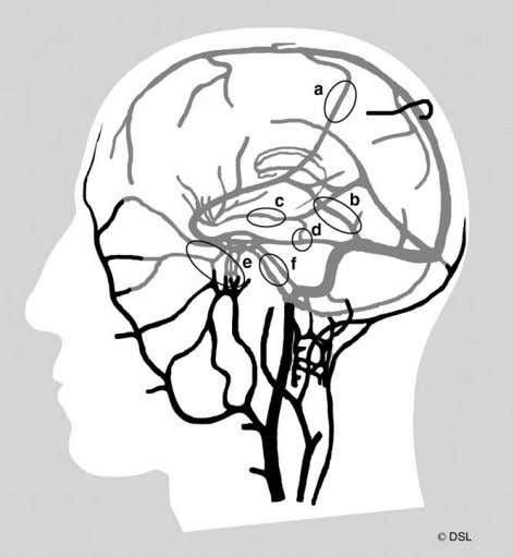 systematic characteriza- tion of venous collateral anatomy. Figure 4 Schematic illustration of intracranial venous