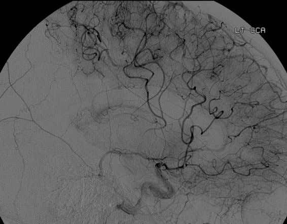 to collateral circulation. Angiography may reveal flow Figure 18 Retrograde leptomeningeal collateral filling of