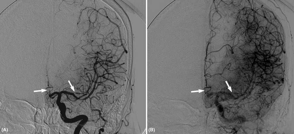 72 Liebeskind Figure 24 Frontal projection of a left ICA injection on angiography of concomitant ACA