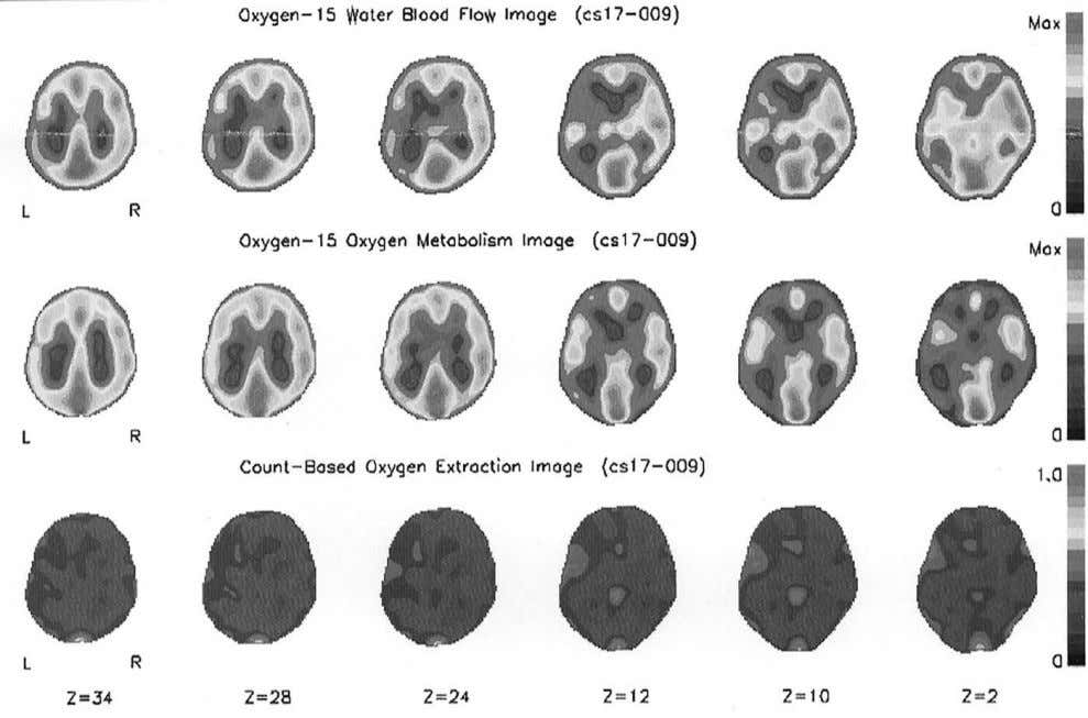 76 Liebeskind Figure 30 Oxygen-15 PET data showing increased oxygen extraction fraction in the right hemisphere