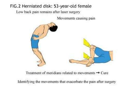 acupuncture to the corresponding points cured the back pain. Some practitioners tend to think that this