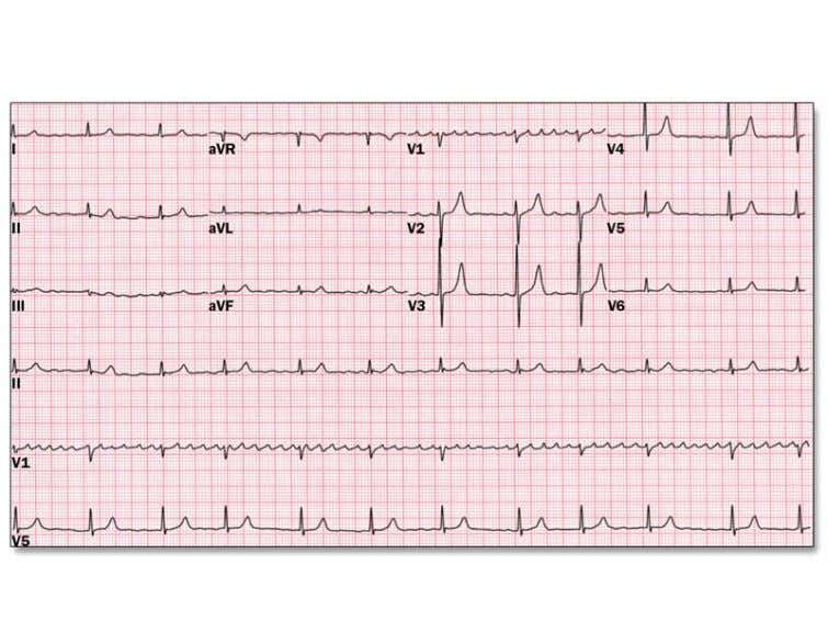 and hypertension. You obtain a 12-lead ECG (Figure 1). His examination reveals: well-nourished male in no