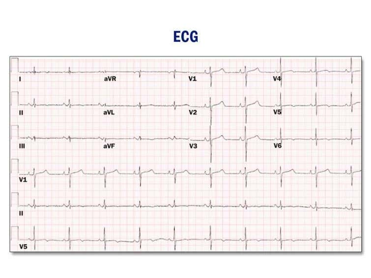 no evidence of ischemia. A 12-lead ECG is shown (Figure 1). Which of the following is