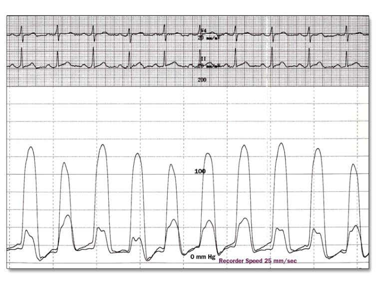 Based on the hemodynamic findings, which of the following is the most likely cardiac diagnosis?