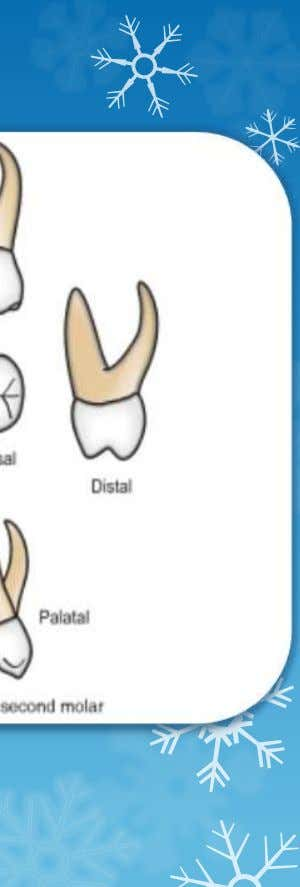 st molar • Resembles permanent maxillary first molar but smaller • Has a minor 5 t