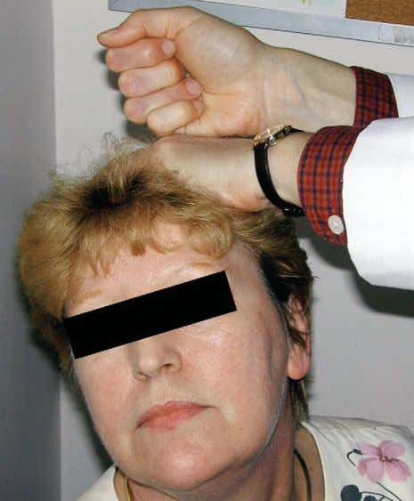 FIGURE 1–4. Spurling maneuver to reproduce the lancinat- ing pain of cervical radiculopathy. SPURLING MANEUVER