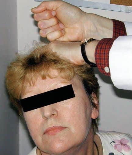 FIGURE 1–11. Spurling maneuver to reproduce the lancinat- ing pain of cervical radiculopathy. SPURLING MANEUVER