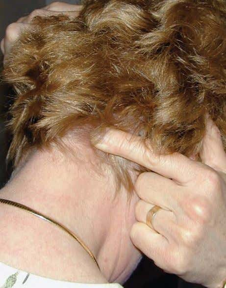 FIGURE 1–15. Palpation of the greater occipital nerve. PALPATION SUMMARY: Headaches are a very common