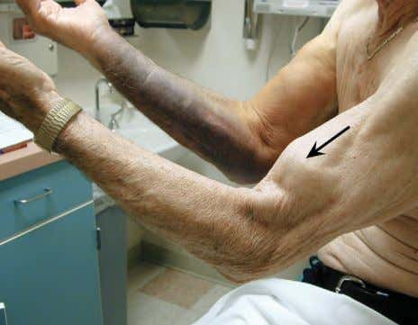 FIGURE 2–26. Bicipital tendon rupture confirmed by clinical examination. BICIPITAL TENDON RUPTURE CASE: This