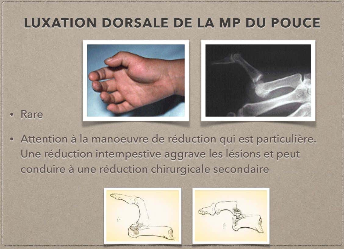 LUXATION DORSALE DE LA MP DU POUCE • Rare • Attention à la manoeuvre de