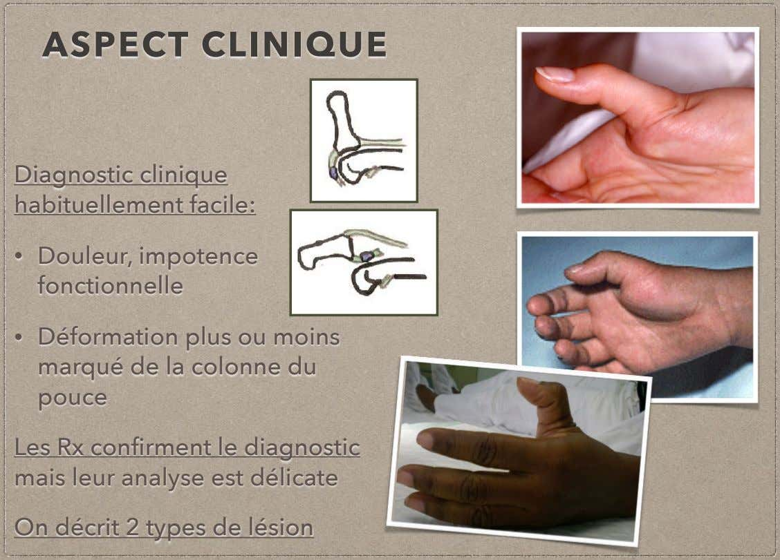 ASPECT CLINIQUE Diagnostic clinique habituellement facile: • Douleur, impotence fonctionnelle • Déformation plus