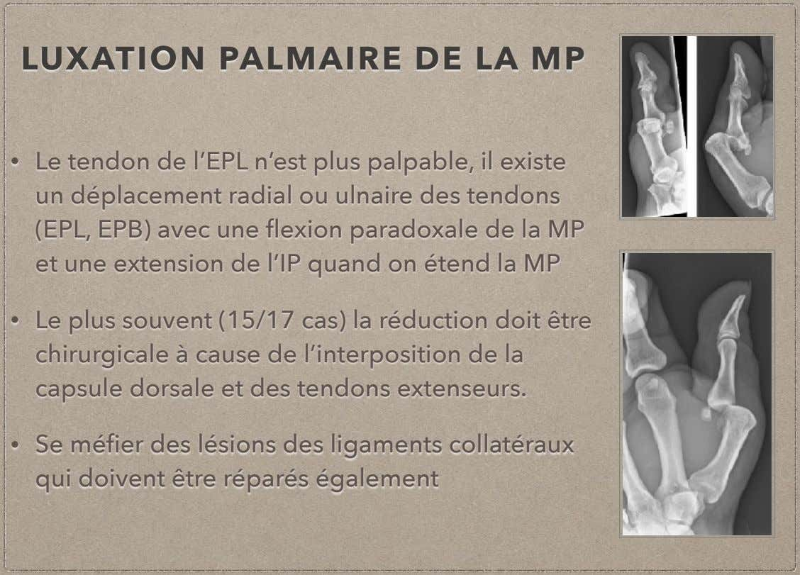 LUXATION PALMAIRE DE LA MP • Le tendon de l'EPL n'est plus palpable, il existe