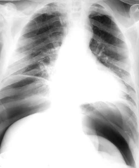erect CXR showing more obvious intraperitoneal free air. Figure 27 Erect CXR showing massive intraperitoneal free
