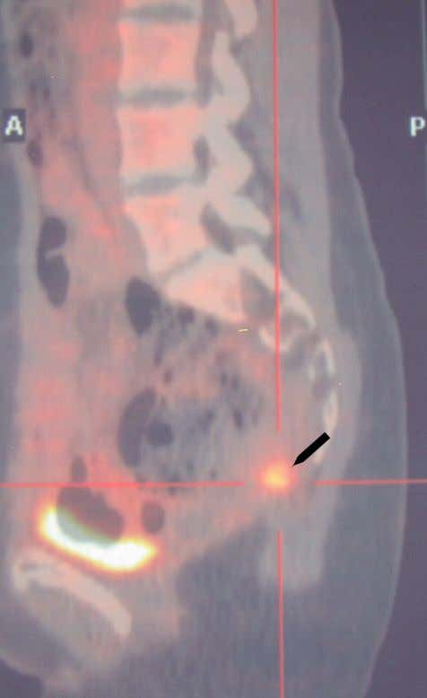 with the anatomical information obtained with CT imaging. Figure 67 Sagittal fused PET/CT image of the
