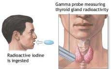 of iodine is necessary for making thyroid hormones. Serum and Urine Tests • Measurement in blood