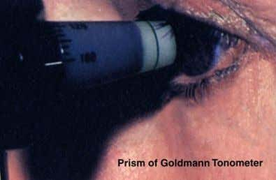 GOLDMANN'S APPLANATION TONOMETER • More accurate, not influenced by ocular rigidity • The foot plate is