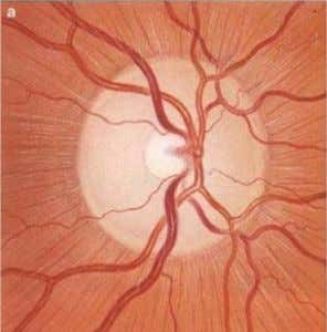 OPHTHALMOSCOPY OF THE OPTIC DISC • The cup-disc ratio: fraction of vertical and horizontal diameter cup