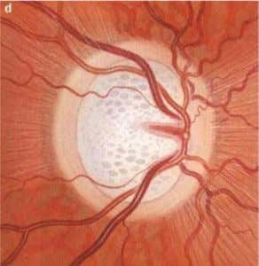 OPTIC DISC CHANGES IN GLAUCOMA • • • Cup and disc ratio > 0.6, Peripapillary atrophy