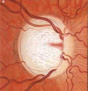 OPTIC DISC CHANGES IN GLAUCOMA 11/16/17 31